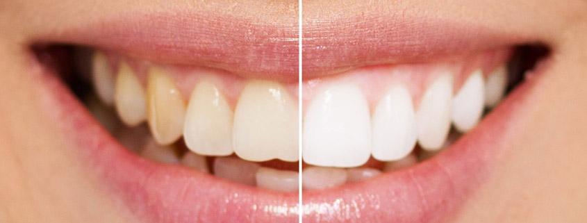 Cosmetic Dentistry Dentist Albury Wodonga
