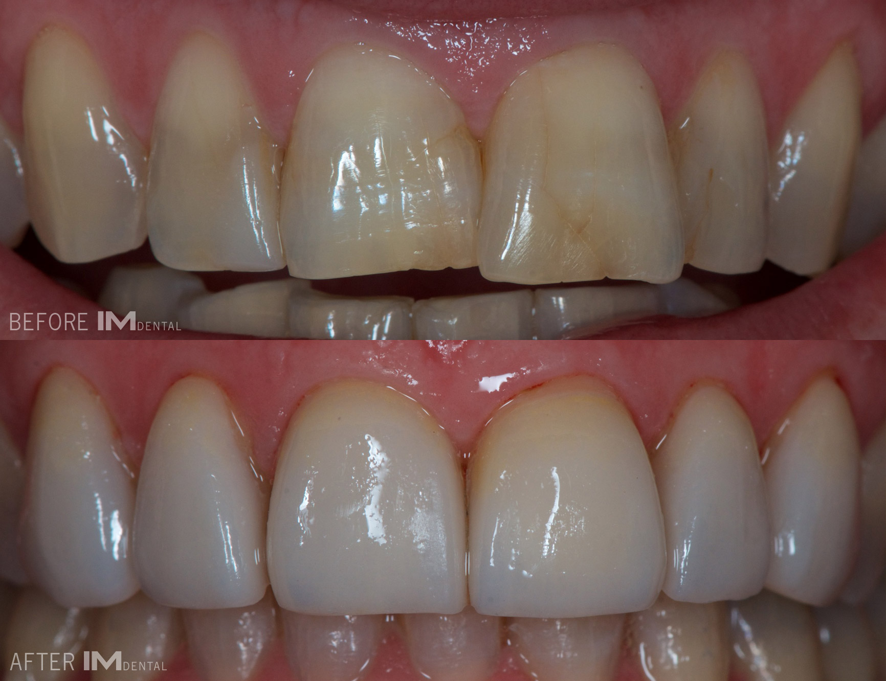 cosmetic dental albury wodonga before and after